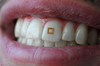 Tooth Sensor Measures Intake of Sugar, Salt, Alcohol