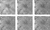 Impact of large choroidal vessels on choriocapillaris flow deficit analyses in optical coherence tomography angiography