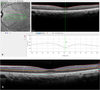 Repeatability of Foveal Measurements Using Spectralis Optical Coherence Tomography Segmentation Software