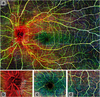 Emerging Applications of Optical Coherence Tomography Angiography (OCTA) in neurological research