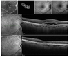 Macular neovascularization in AMD, CSC and best vitelliform macular dystrophy: quantitative OCTA detects distinct clinical entities