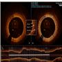 Optical coherence tomography for characterization of cardiac allograft vasculopathy after heart transplantation (OCTCAV study)