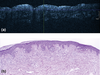 High-definition optical coherence tomography of melanocytic skin lesions