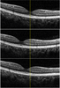 Speckle reduction in optical coherence tomography by two-step image registration