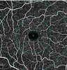 Comparison of optical coherence tomography angiography results of adult patients with Familial Mediterranean fever and healthy individuals