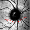 Vessel Labeling in Combined Confocal Scanning Laser Ophthalmoscopy and Optical Coherence Tomography Images: Criteria for Blood Vessel Discrimination