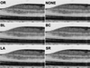 Potential Measurement Errors Due to Image Enlargement in Optical Coherence Tomography Imaging