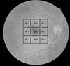 Structure–Function Correlation Using OCT Angiography And Microperimetry In Diabetic Retinopathy