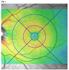 Large-cube 30° × 25° optical coherence tomography in diabetic macular edema