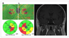 Could optical coherence tomography add to the history of the pituitary incidentaloma?