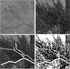 A Pilot Quantitative Study of Topographic Correlation between Reticular Pseudodrusen and the Choroidal Vasculature Using En Face Optical Coherence Tomography