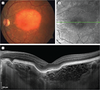 Enhanced Depth Imaging–Optical Coherence Tomography of Choroidal Osteom