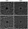 Reduced Retinal Microvascular Perfusion in Patients With Stroke Detected by Optical Coherence Tomography Angiography