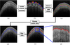 Internal fingerprint zone detection in optical coherence tomography fingertip scans