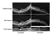Automatic detection of retinal regions using fully convolutional networks for diagnosis of abnormal maculae in optical coherence tomography images
