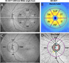 Diagnostic Ability of Macular Ganglion Cell Inner Plexiform Layer Measurements in Glaucoma Using Swept Source and Spectral Domain Optical Coherence Tomography