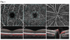 The vessel density of the superficial retinal capillary plexus as a new biomarker in cerebral small vessel disease: an optical coherence tomography angiography study