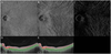 Visualizing large choroidal blood flow by subtraction of the choriocapillaris projection artifacts in swept source optical coherence tomography angiography in normal eyes