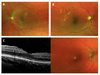 Spectral domain optical coherence tomography-based retinochoroidal cystine crystal score: a window into infantile nephropathic cystinosis