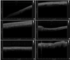Measurement of Oral Epithelial Thickness by Optical Coherence Tomography