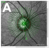 A comparison of optic disc area measured by confocal scanning laser tomography versus Bruch's membrane opening area measured using optical coherence tomography