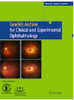 Dynamic intraoperative optical coherence tomography for inverted internal limiting membrane flap technique in large macular hole surgery