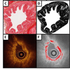 Optical coherence tomography (OCT) detects collagen within the airway wall extracellular matrix