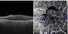 Early retinal flow changes after vitreoretinal surgery in idiopathic epiretinal membrane using swept source optical coherence tomography angiography
