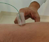 Optical probe at surgeon's fingertips for breast cancer removal