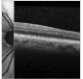 Spectral Domain Optical Coherence Tomography Findings in Myotonic Dystrophy