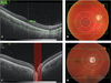 Choroidal thickness and the retinal ganglion cell complex in chronic Leber's hereditary optic neuropathy: a prospective study using swept-source optical coherence tomography