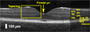 Fabrication of healthy and disease-mimicking retinal phantoms with tapered foveal pits for optical coherence tomography