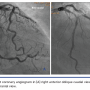 Mother-and-Child Catheter-Induced Retrograde Dissection of the Left Main Coronary Artery During Optical Coherence Tomography Examination