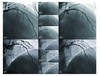 Optical coherence tomography-guided excimer laser coronary angioplasty in overlapping stents with severe under-expansion and underlying calcification