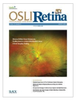 Optical Coherence Tomography Angiography in Monitoring Proliferative Macular Telangiectasia Type 2 Treatment Response