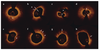 Culprit-Plaque Morphology and Residual SYNTAX Score Predict Cardiovascular Risk in Acute Myocardial Infarction: An Optical Coherence Tomography Study