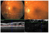 Behavior of SD-OCT Detectable Hyperreflective Foci in Diabetic Macular Edema Patients after Therapy with Anti-VEGF Agents and Dexamethasone Implants