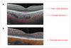 Assessment of the outer retina and choroid in white matter lesions participants using swept-source optical coherence tomography