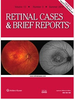 MULTIMODAL IMAGING AND TREATMENT OF SYPHILITIC CHOROIDAL NEOVASCULARIZATION