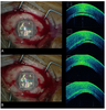 Intraoperative optical coherence tomography guided corneal sweeping for removal of remnant Interface fluid during ultra-thin Descemet stripping automated endothelial keratoplasty