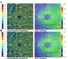 Comparison of inner macular thickness and superficial macular capillary vessel density acquired using classic and high-definition optical coherence tomography angiography scans