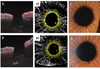 Observation of treated iris neovascularization by swept-source-based en-face anterior-segment optical coherence tomography angiography