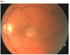 Asymmetric response to ranibizumab in mixed choroidal neovascularization in a neovascular age-related macular degeneration diagnosed on OCT angiography