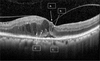 Interobserver agreement in detecting spectral-domain optical coherence tomography features of diabetic macular edema