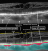 Choroidal Vascularity Index (CVI) - A Novel Optical Coherence Tomography Parameter for Monitoring Patients with Panuveitis?