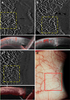 Optical coherence tomography angiography for the anterior segment