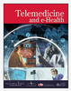 Implementation of Teleretinal Screening Using Optical Coherence Tomography in the Veterans Health Administration