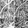Deep learning toolbox for automated enhancement, segmentation, and graphing of cortical optical coherence tomography microangiograms