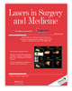 Combining Nd:YAG laser with optical coherence tomography for nonsurgical treatment of basal cell carcinoma