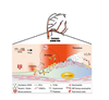 Role of mechanical stress and neutrophils in the pathogenesis of plaque erosion